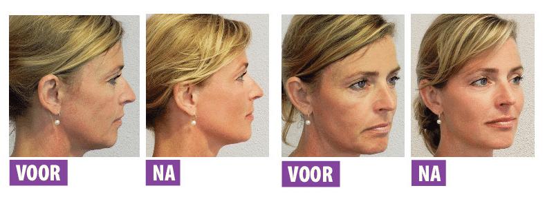 Inside-out-facial-treatment-mozart-kliniek-bussum