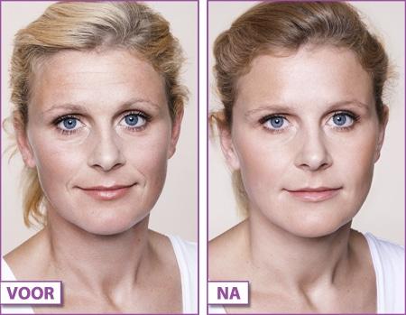 Resultaat botox voorhoofd behandeling