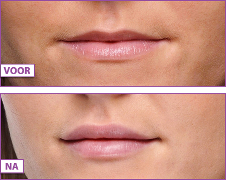 Lippen-opvullen-dunne-bovenlip-mooie-lippen-fillers-Gooi-Bussum