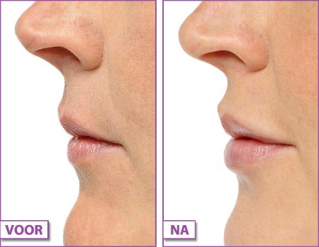Lippen-opvullen-botox