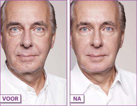 Wallen-onder-ogen-voor-en-na-behandeling-met-FILLERS-Gooi-Bussum
