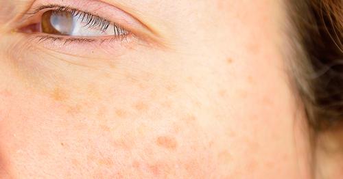 pigmentvlekken behandeling huidtherapie