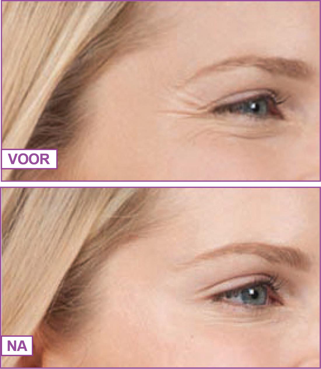 botox behandeling het gooi