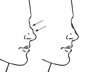 neus-correctie-fillers-kliniek-bussum-injectables-zonder-operatie
