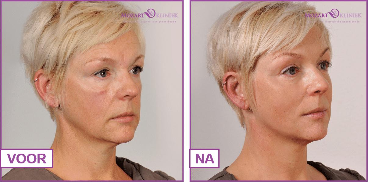 Resultaten behandeling fillers voor ingevallen gezicht