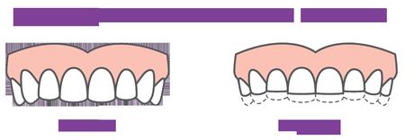 de gevolgen van tandenknarsen