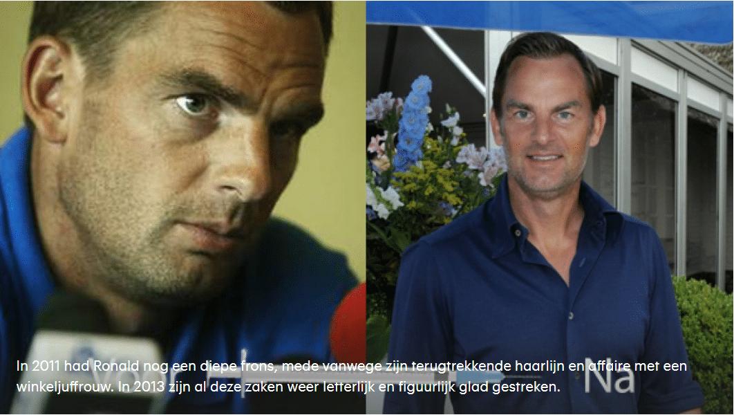 Editienl-Botox-nu-ook-voor-echte-mannen