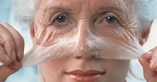 Huid verjonging met Botox
