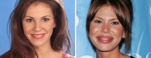 problemen botox kraaienpootjes