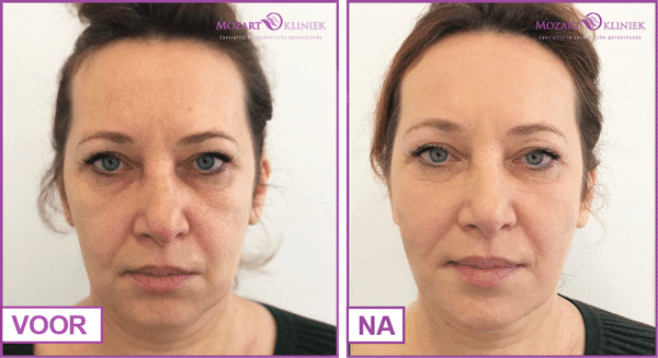 Resultaten draadlift behandeling gezicht