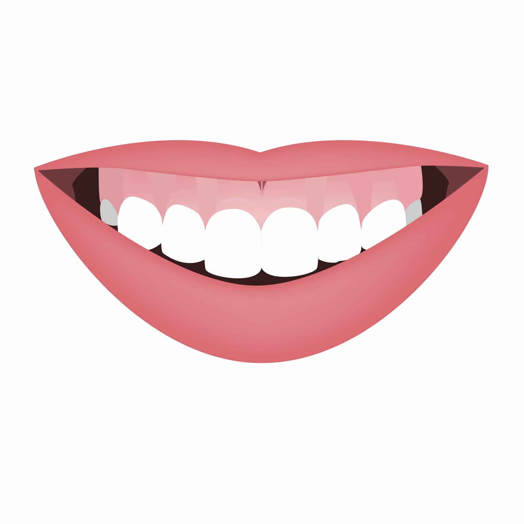 illustratie van een Gummy smile